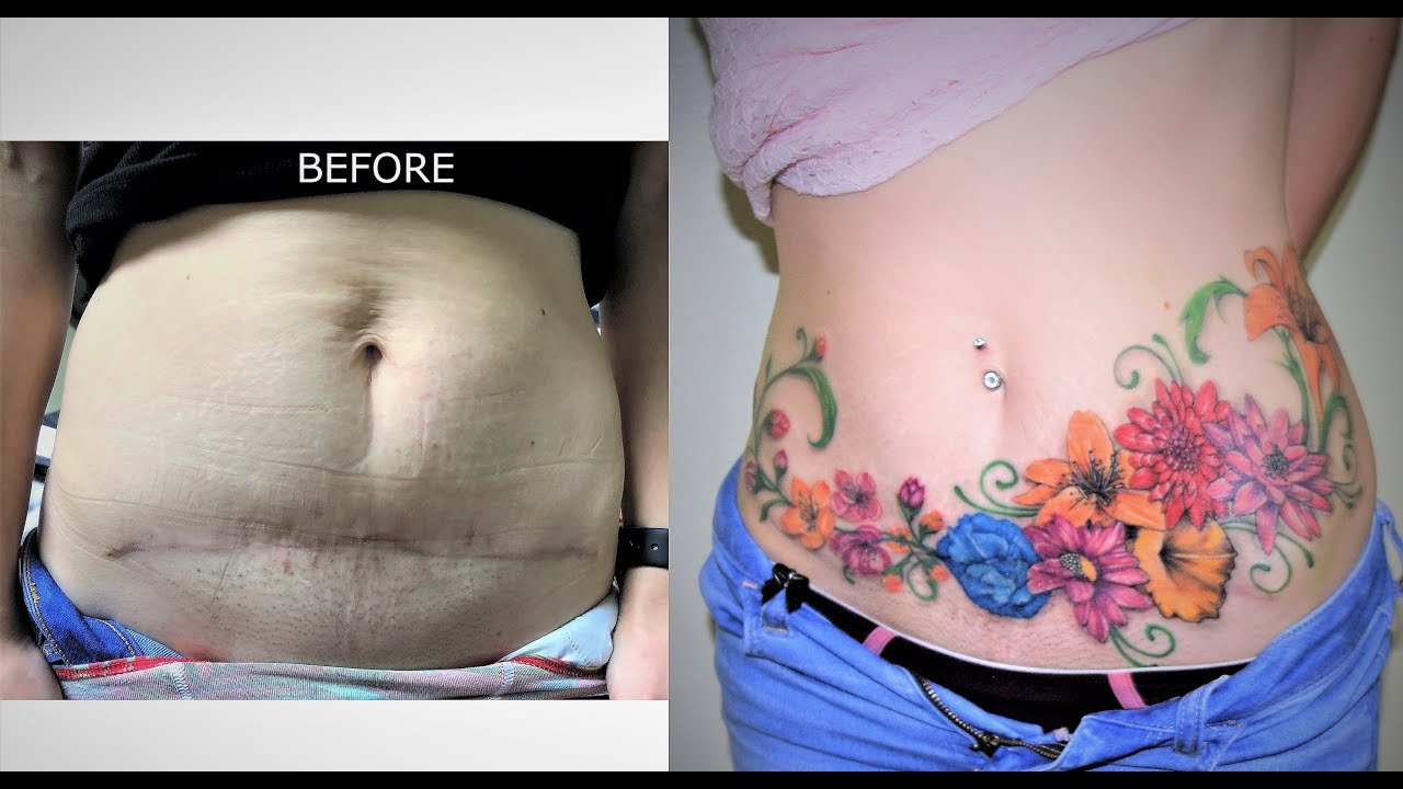 COVER UP BELLY SCARS AND STRETCH MARKS - YouTube