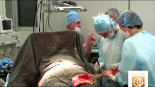 Операция по подтяжке кожи после сильного похудения