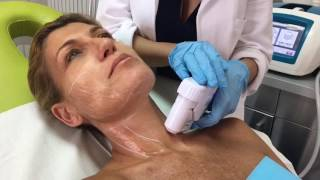 HIFU skintherapy. PELLE GIOVANE Dr Urtis Clinic