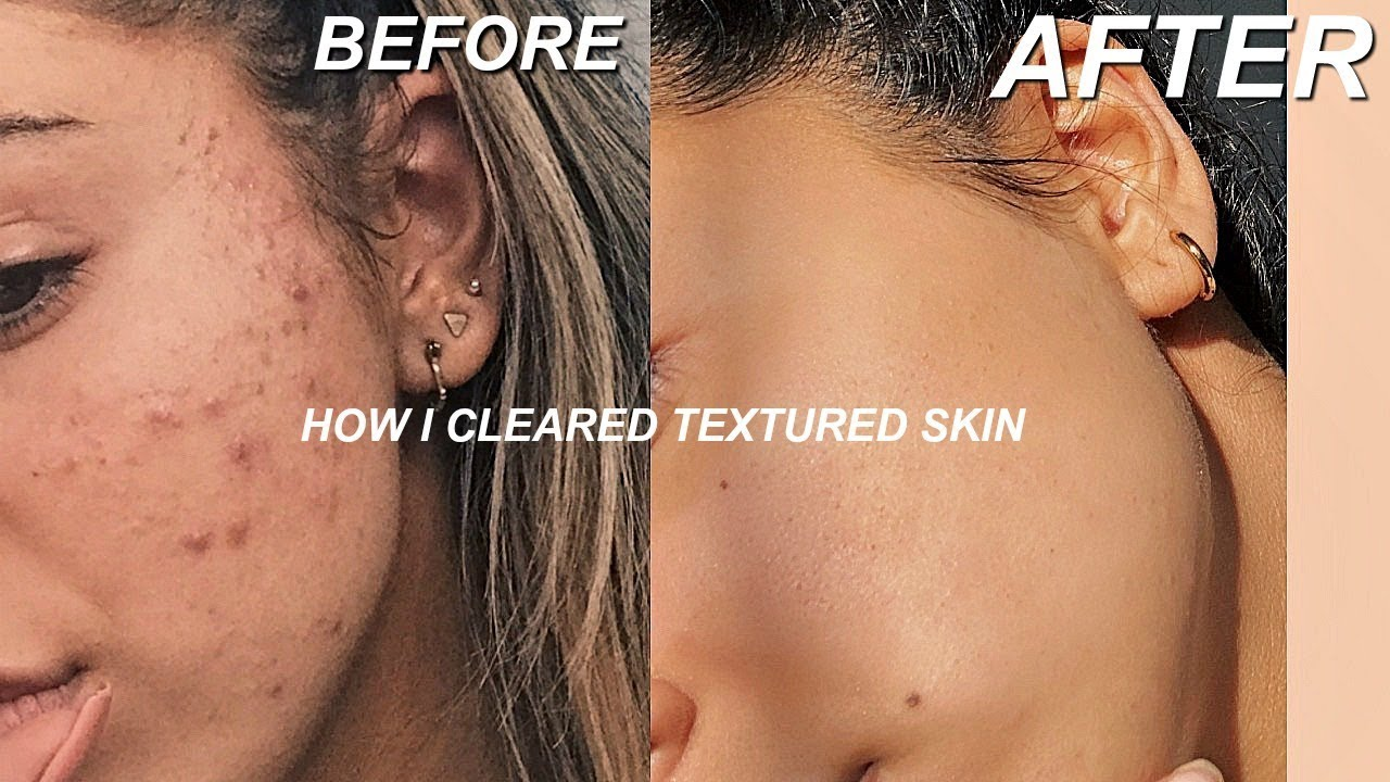 HOW I GOT RID OF TEXTURED SKIN  TIPS FOR CLEAR SKIN