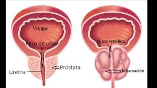 cancerul de prostata se mosteneste)
