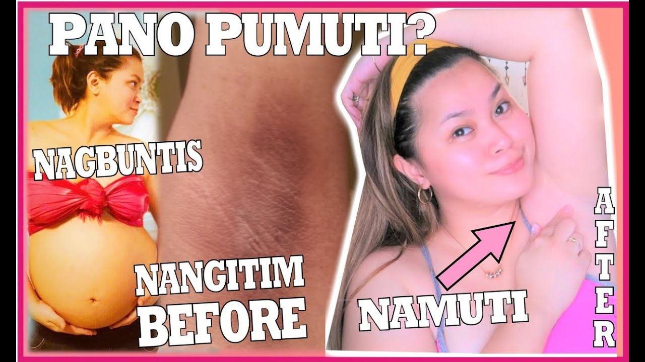 Download PANO PUMUTI ANG KILIKIKI KO | DEONAT SPRAY AND MILCU | TIPS PARA SA KILIKILI GOALS |