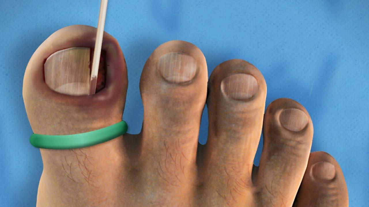 SO DISGUSTING! | Ingrown Toenail Surgery - YouTube
