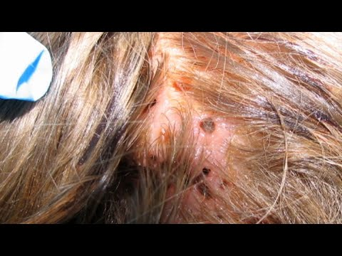 Mysterious Lesions on Girl's Head Turn Out to be Flesh