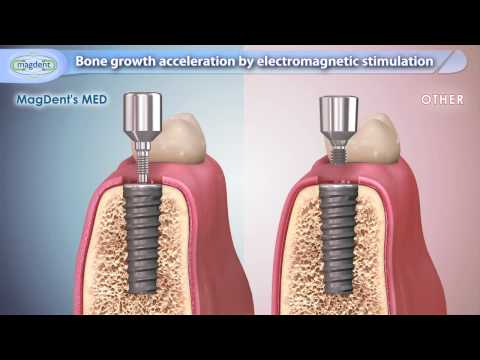 New dental implant tech speeds and improves bone growth