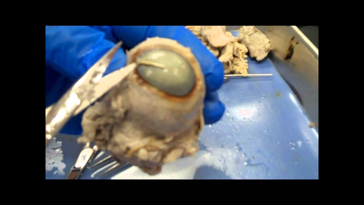 Cow eye dissection lab procedure
