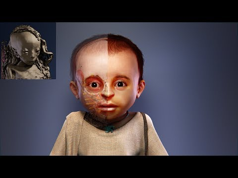 St. Louis child mummy - forensic facial reconstruction