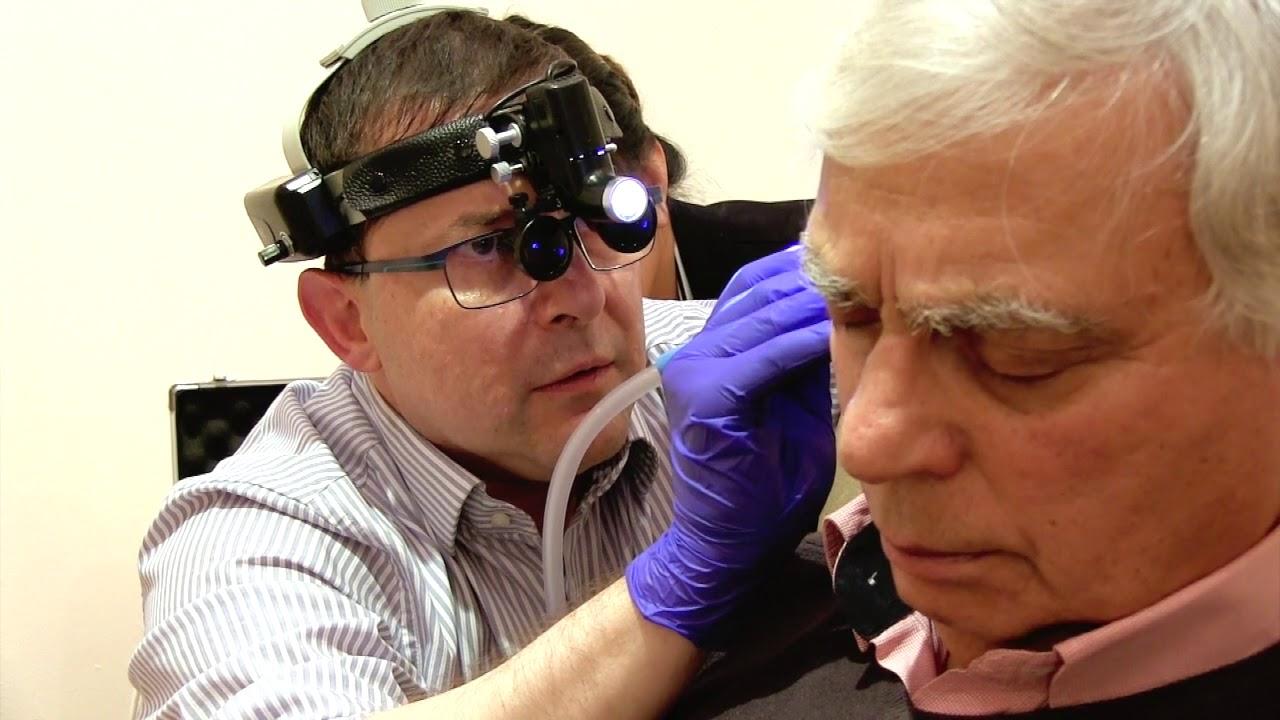 Microsuction Ear Wax Removal Clinic Near Me - YouTube