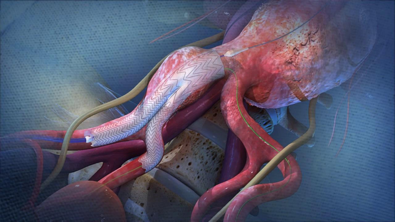 Anévrisme de l'Aorte - Chirurgie vasculaire Reims