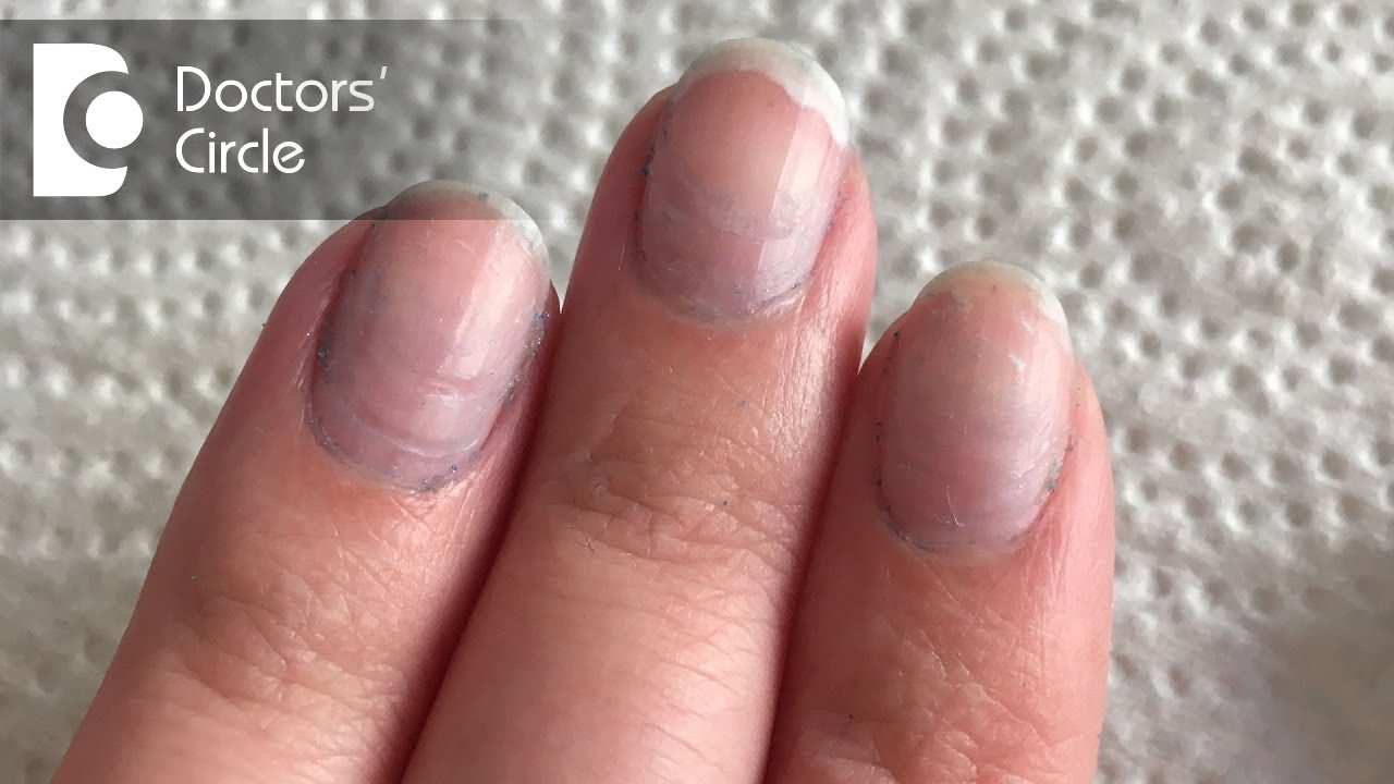 What Causes Bluish Discoloration Of Nail Beds