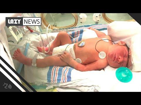 Luis Treviño - Conoce Al Bebe Milagro: Nacio Con El Cerebro Fuera De Su Cabeza