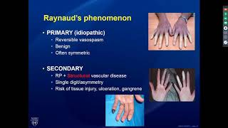 Rheumatology Pearls In Systemic Sclerosis  9/18/19