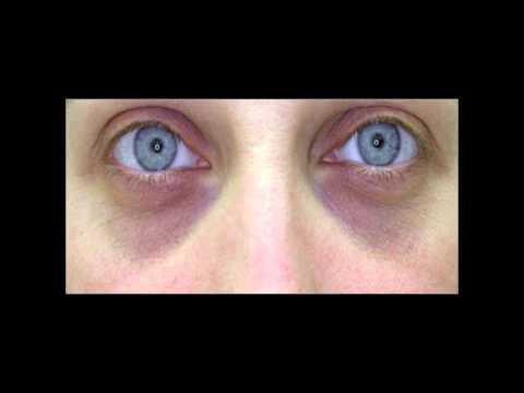 DIY How to Get Rid of DARK CIRCLES under eyes | dark circles under eyes treatment Home Remedy ✔
