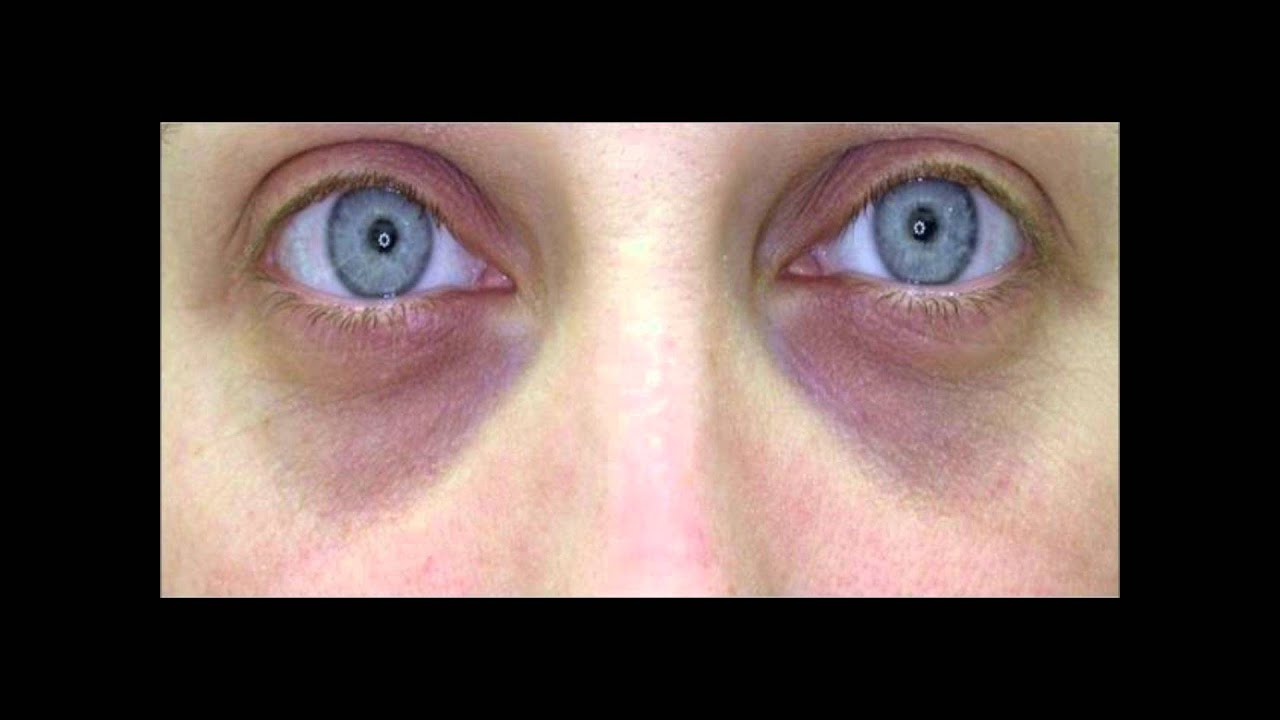 I Have Such Dark Circles Under My Eyes. What Can I Do
