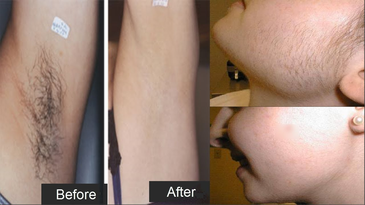 How To Remove Facial Body Hairs Naturally Permanently At Home