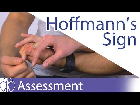 Hoffmanns Sign or Reflex  Upper Motor Neuron Lesion
