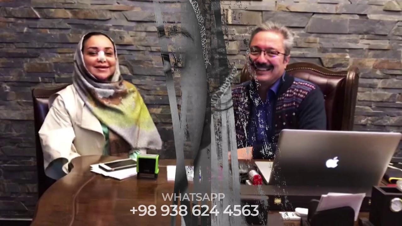 تجربة الأخت نجمة بعد شهرين من عملية تجميل الانف اللحمي في ايران