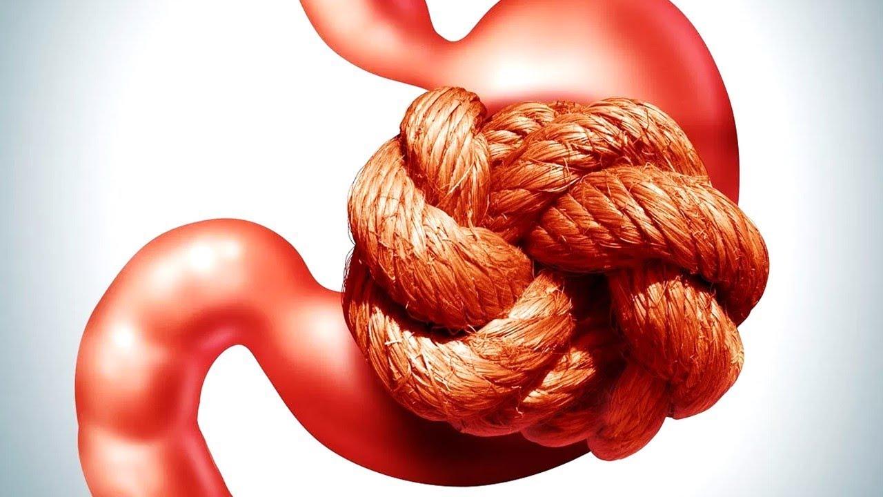 इस नुस्खे से खत्म होगी कब्ज की समस्या | how to cure chronic constipation  permanently