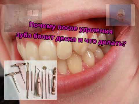 Почему после удаления зуба болит десна и что делать?