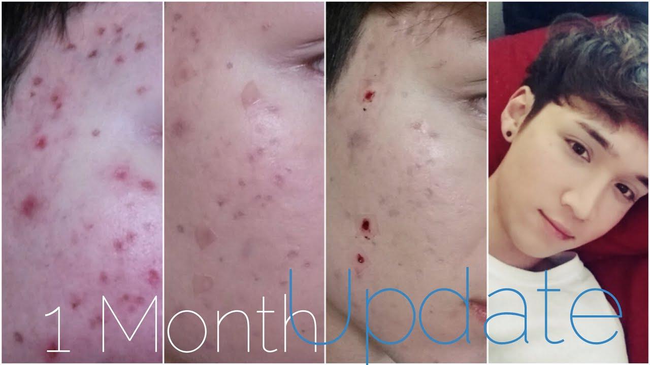 korean skin care acne scars?