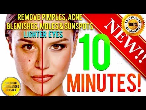 Remove Dark Spots Blemishes Acne Moles Get Lighter Eyes In Minutes Subliminal Affirmatio