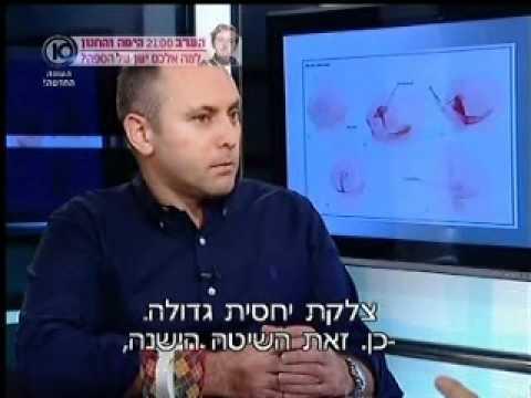 כירורגיה פלסטית: הקטנת חזה