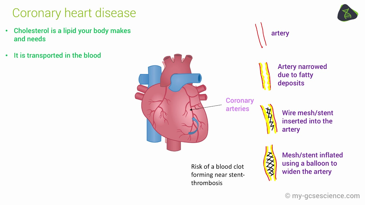 Gcse biology cardiovascular disease edexcel 9 1 youtube gcse biology cardiovascular disease edexcel 9 1 pooptronica Gallery