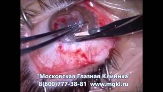 Операция по удалению птеригиума глаза(Видео операции по удалению птеригиума глаза. Цены на хирургическое лечение и отзывы пациентов на сайте..., 2016-08-10T09:28:20.000Z)