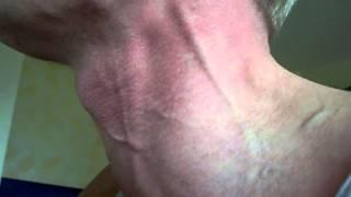 neck veins