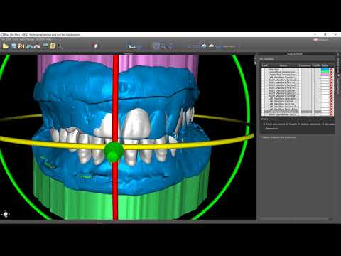 Blue Sky Bio Denture Software Beta Tutorial