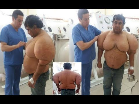 Peruvian diver swells to double his size due to the bends