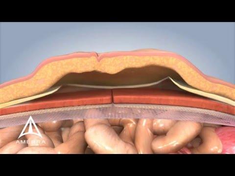 Ventral Hernia Repair - 3D Medical Animation