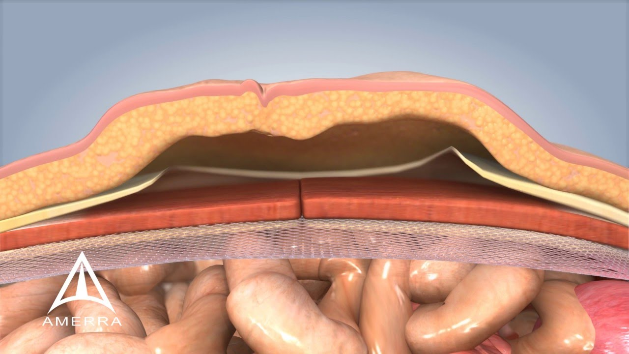 Ventral Hernia Repair - 3D Medical Animation - YouTube