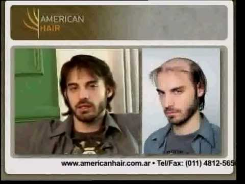 Perdida de cabello - American Hair by Apollo International