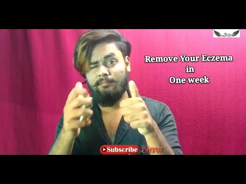 How To Remove Your Eczema In One's Week