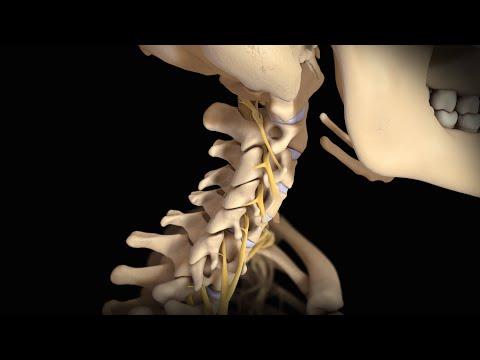 Neck Surgery | Cervical Disc Replacement | Nucleus Health