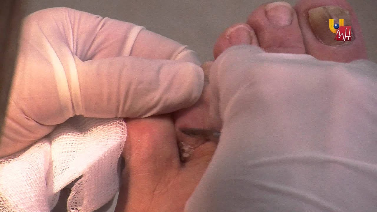 remover callos dedos pies