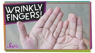 Why Do I Get Wrinkly Fingers in the Bath?