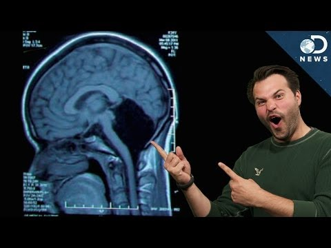 How Can You Survive Without Part Of Your Brain?