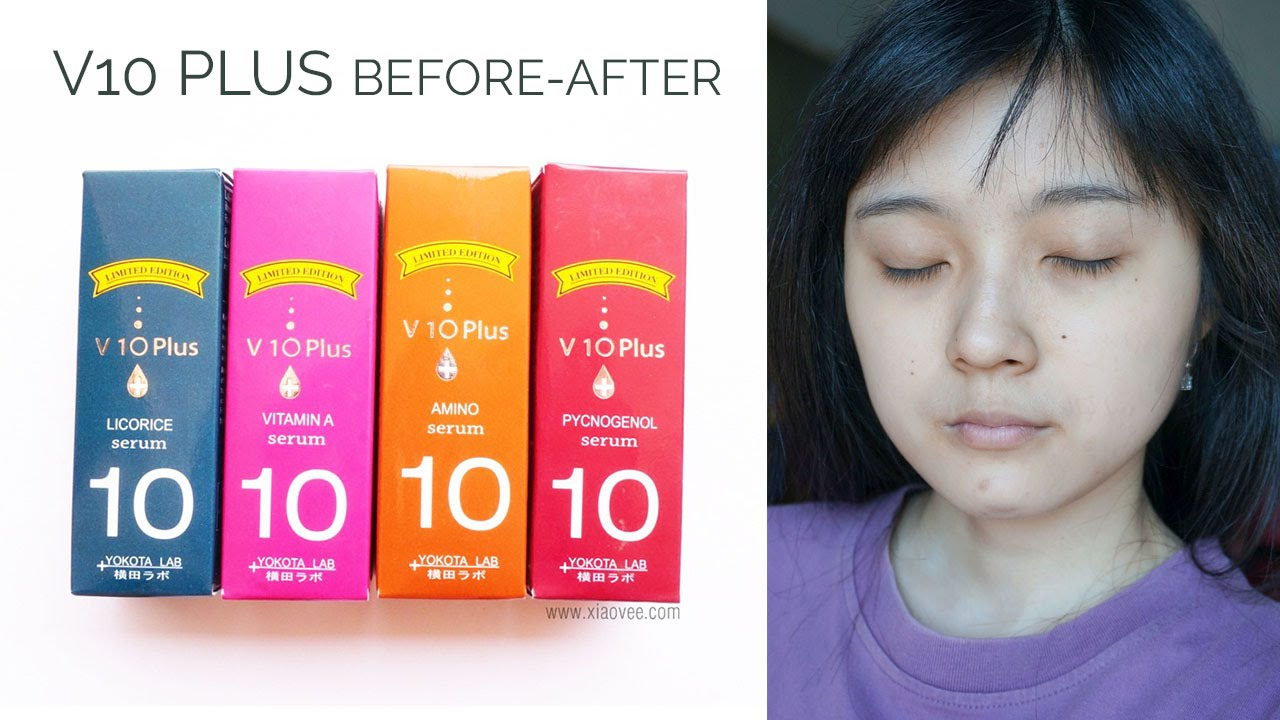 Review V10 Plus Serum Before After Youtube