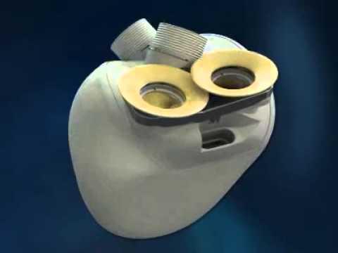 Le coeur artificiel développé par la société Carmat