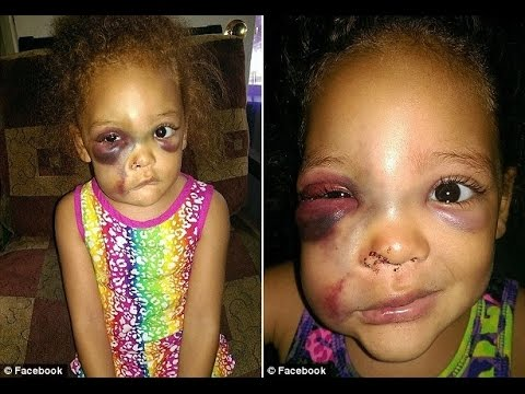 Mother Demands Answers For School's Coverup Of 'Playground Injury'