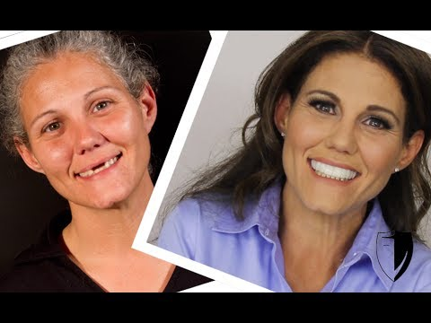 Press On Veneers Homeless Woman Gets Smile/Makeover Online