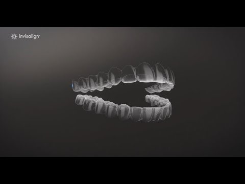 What is Invisalign?   Dr. Virginia L. Gregory, DMD