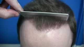 Hair Restoration Video - 1.800.859.2266