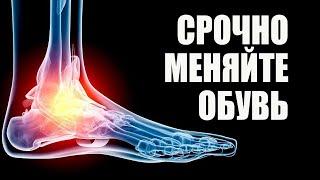 Тесная Обувь Деформация Стопы Подагра Грибок Ногтей Бурсит