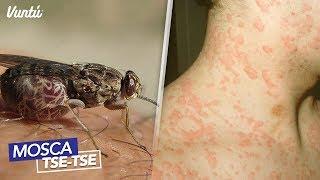 Las 7 picaduras de insectos más letales y dolorosas