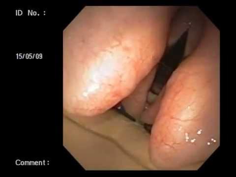 Veterinary Bronchoscopy#463, Dynamic Laryngeal Narrowing On Expiration, Australian Shepherd 11y M