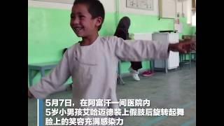 令人心疼!阿富汗男孩带装上假肢后开心起舞