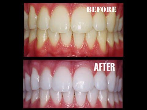 le secret pour retrouver des dents blanches orthodontiste youtube. Black Bedroom Furniture Sets. Home Design Ideas